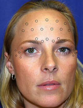 Point d'injection botox